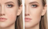 5 начина да свиете порите на кожата