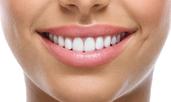 3 лесни трика за по-бели зъби