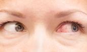 Най-честите причини за зачервени очи