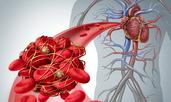 Природни продукти за разреждане на кръвта против тромбоза